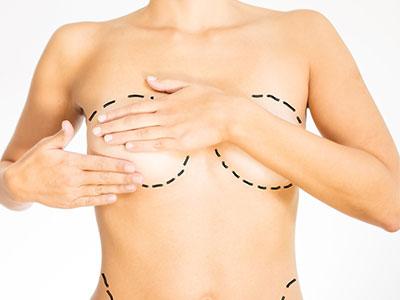 Augmentation ou réduction mammaire